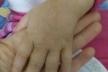 Після побоїв матері на Львівщині госпіталізували 4-річну дівчинку (Фото)
