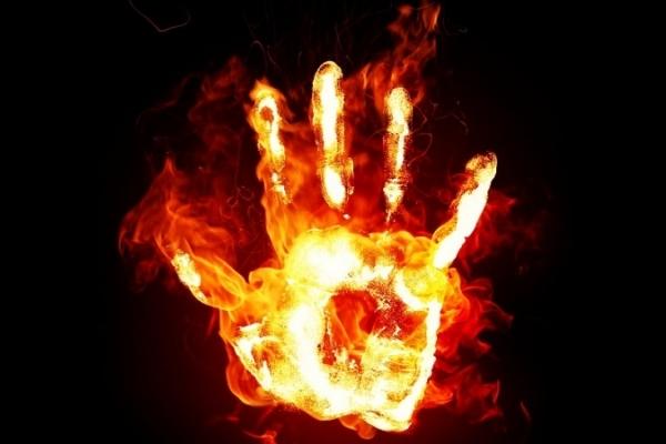На Львівщині молода жінка спалахнула під час розпалювання печі