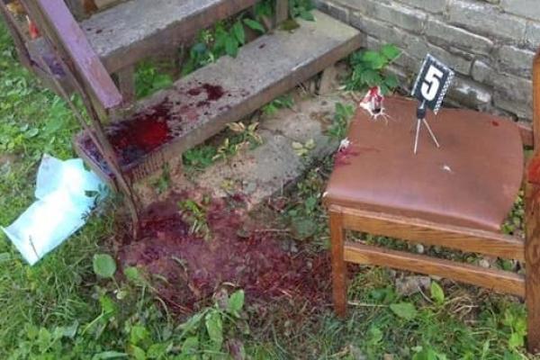 На Львівщині іноземець напав на стоматолога та наніс йому ножові поранення