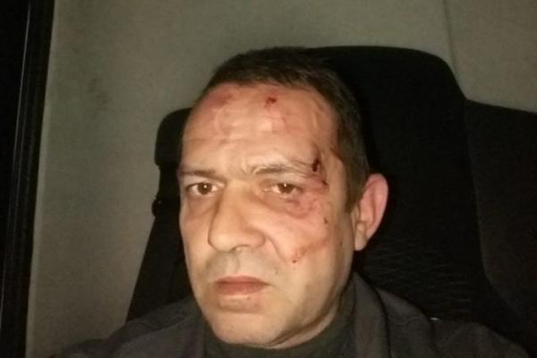 У центрі Львова побили бригаду сміттєвоза