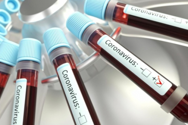 На Львівщині зафіксували 90 осіб з підозрою на коронавірус