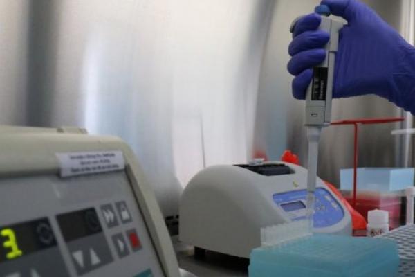 У Львові велика черга на проведення ПЛР-тесту: більше 1400 людей очікують на свій діагноз