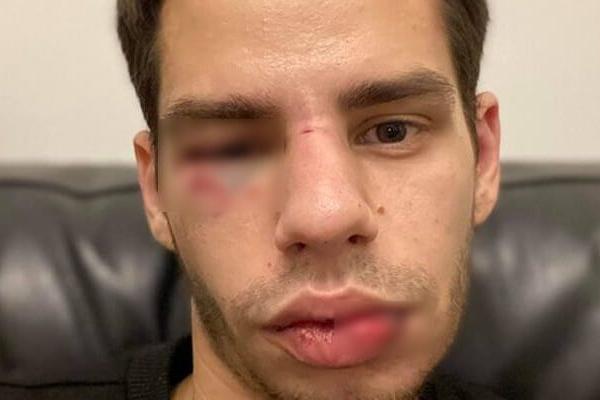 У Львові таксист жорстоко побив клієнта